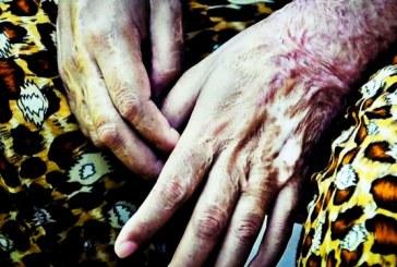 دو مجروح بر اثر اسیدپاشی در استان سمنان