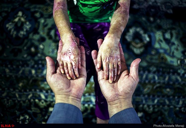 تصاویر بیماران ای بی، انجمن Eb تهران