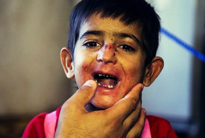 مرگ خاموش کودکان جنوب کرمان/ گزارش تصویری