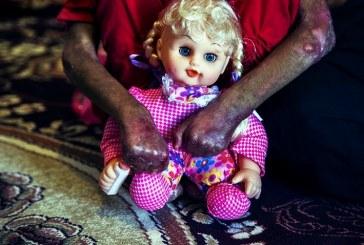 زخمهایی که با روزنامه پانسمان میشوند؛ ترک تحصیل کودکان پروانهای
