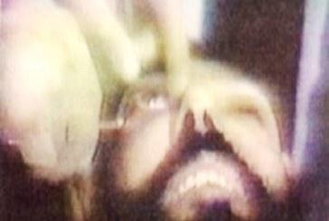 احتمال صدور حکم قصاص چشم یک جوان در تهران
