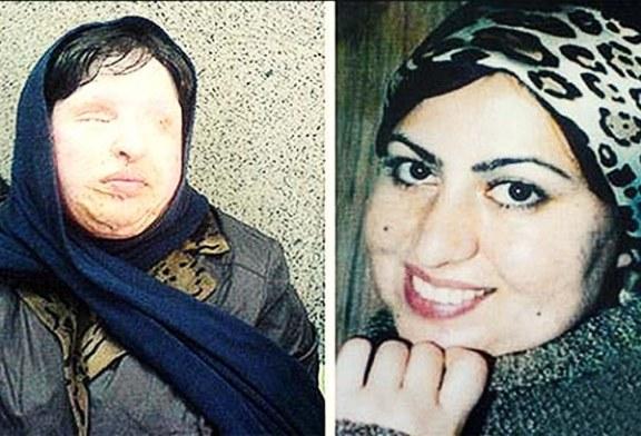عمل نشدن آمنه بهرامی به دلیل عدم پرداخت فاکتور چهار ساله بیمارستان توسط سفارت ایران