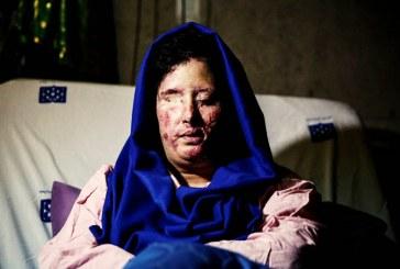پدر قربانی اسیدپاشی اصفهان: هیچ پیشرفتی در دستگیری مجرمان حاصل نشده است