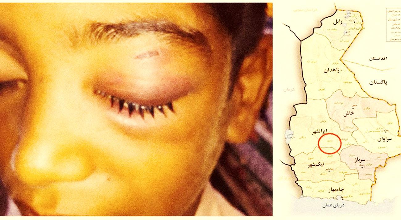 ضربوشتم معلم، دانشآموز بمپوری را روانه بیمارستان کرد
