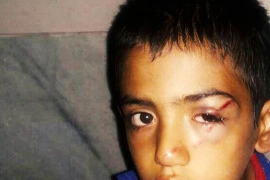 ضرب و شتم دانش آموز فهرجی و مجروح شدن چشم