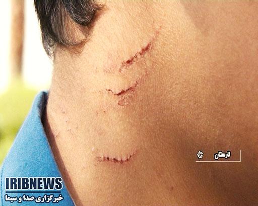 ضرب و شتم یک دانشآموز از سوی مدیر مدرسه در لارستان