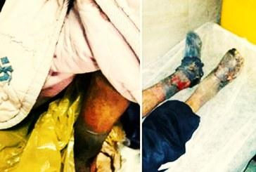 قطع هر دو پای بیمار کارتنخواب در همدان به دلیل سوءتدبیر مسوولان