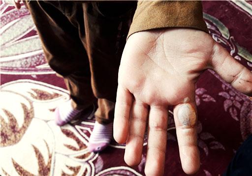 سوزاندن دست دانشآموز چاروسایی از سوی معلم