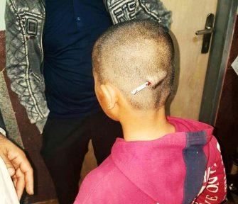 تنبیه یک دانش آموز در کرمان با فرو کردن مداد در سر