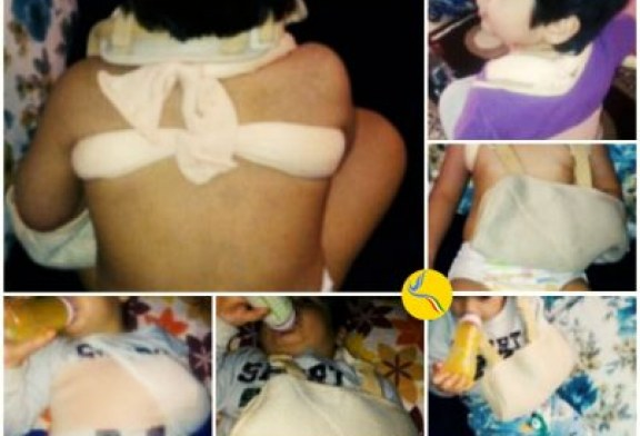 شکستگی استخوان ترقوه کودک سه ساله در پی رفتار خشونت آمیز مربی مهدکودک