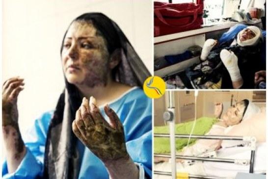 اسیدپاشی در تبریز؛ «مریم در اسید سوخت»