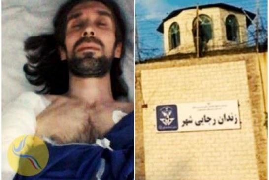 عفونت شدید آرش صادقی در ناحیه جراحیشده به دلیل ممانعت از بستریشدن در بیمارستان